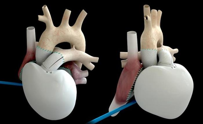 Μόνιμη τεχνητή καρδιά, το μέλλον των καρδιοπαθών | tovima.gr