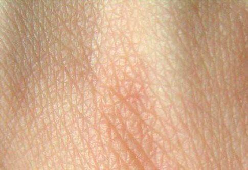Δέρμα εργαστηρίου με αγγεία | tovima.gr