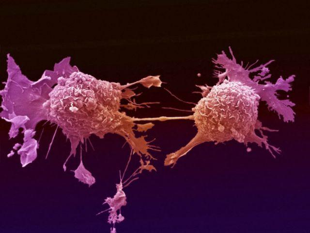 Αντικαρκινικός «δυναμίτης» | tovima.gr