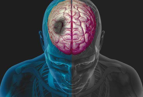 Γονίδιο-«φίλος» εγκεφαλικών και εμφραγμάτων | tovima.gr