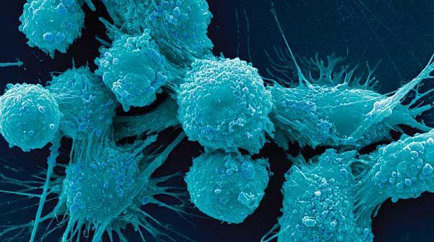 Βρήκαν πώς να «σβήσουν» τον καρκίνο του προστάτη | tovima.gr