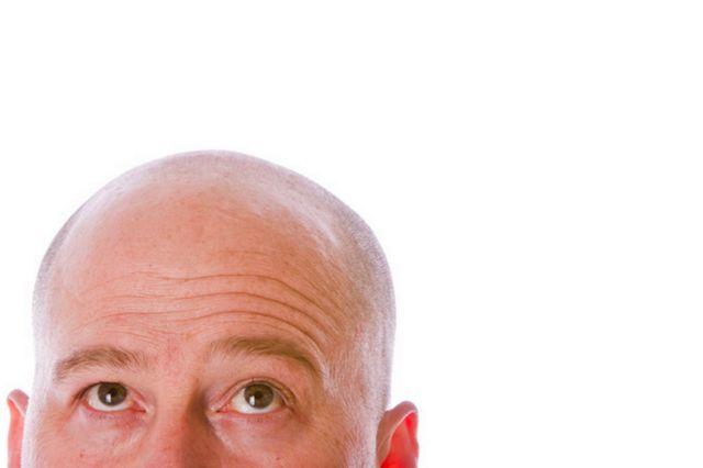 Νέα επαναστατική μέθοδος αναγέννησης μαλλιών | tovima.gr
