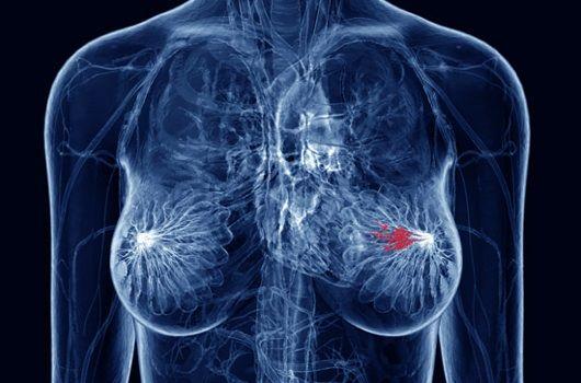 Φωτίζεται η μετάσταση του καρκίνου του μαστού στα οστά   tovima.gr