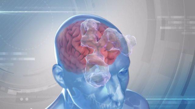 Διέσπασαν τον εγκεφαλικό φραγμό | tovima.gr