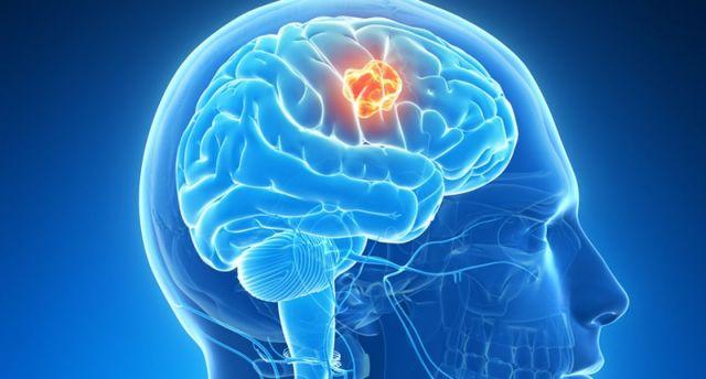 Ιός αναλαμβάνει να εξοντώσει επιθετικό καρκινικό όγκο στον εγκέφαλο | tovima.gr