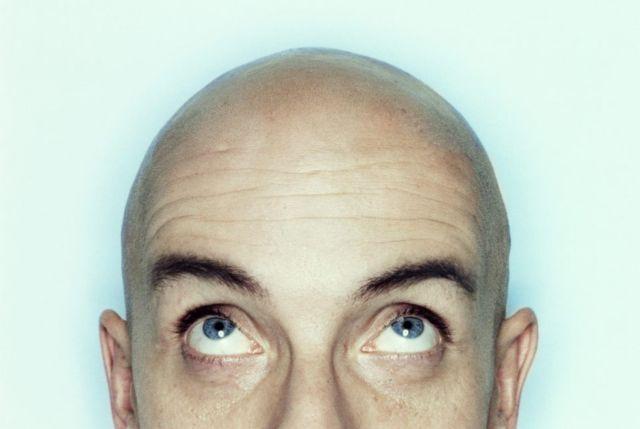 Στη μάχη κατά της φαλάκρας με 3D τρίχες!   tovima.gr