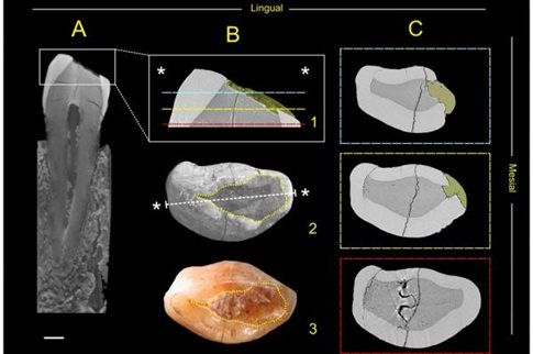 H επίσκεψη στον προϊστορικό οδοντίατρο ήταν μάλλον εφιαλτική | tovima.gr