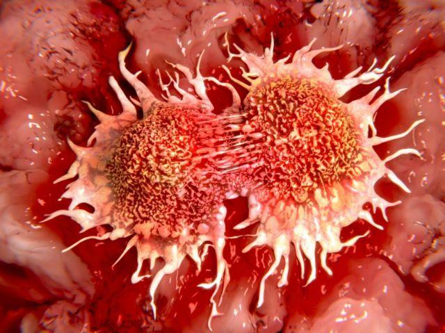 Καρκίνος: βελτίωση στην επιβίωση αλλά με ανισότητες | tovima.gr