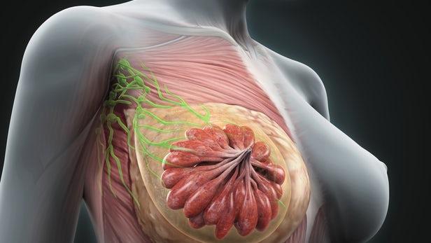 Καρκίνος μαστού: Διπλή «επίθεση» εξολοθρεύει τα καρκινικά κύτταρα | tovima.gr