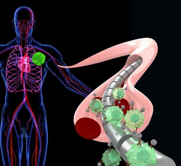 Μαγνητικό καλώδιο ανιχνεύει τον καρκίνο | tovima.gr