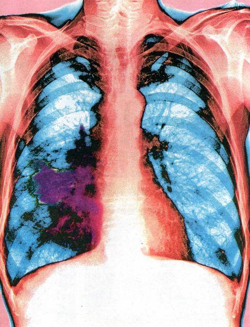 23.000 ευρωπαίοι ετησίως με μη μικροκυτταρικό καρκίνο του πνεύμονα | tovima.gr