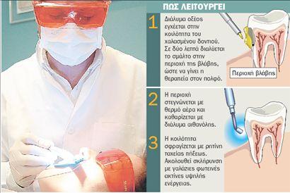 Ο οδοντιατρικός τροχός γίνεται… ζελέ | tovima.gr
