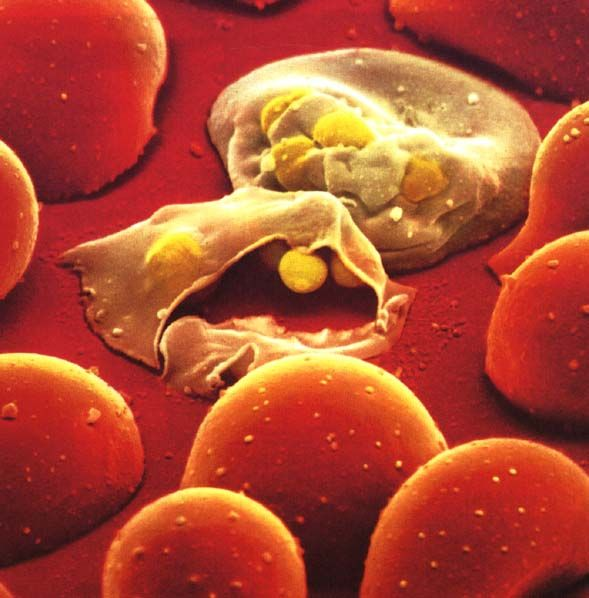Νέο υποσχόμενο εμβόλιο για την ελονοσία | tovima.gr