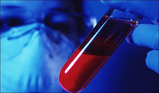 Ελπιδοφόρος γονιδιακή θεραπεία για την αιμορροφιλία | tovima.gr