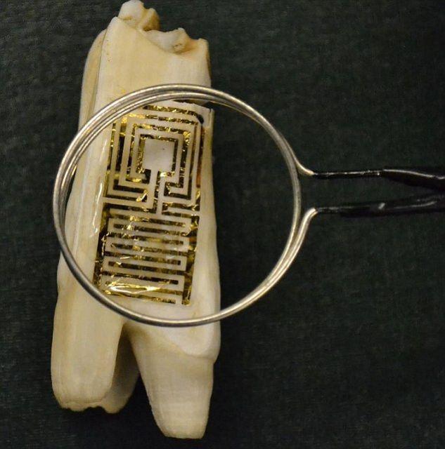 Τατουάζ…δοντιού εναντίον λοιμώξεων | tovima.gr
