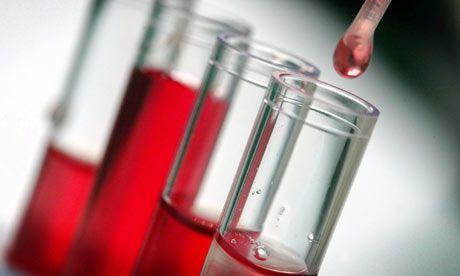 Τεστ αίματος προβλέπει τον καρκίνο του μαστού | tovima.gr