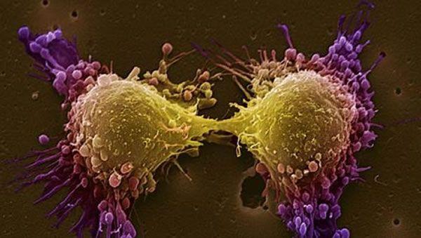 Η πρωτεΐνη της ανθεκτικότητας στις χημειοθεραπείες | tovima.gr