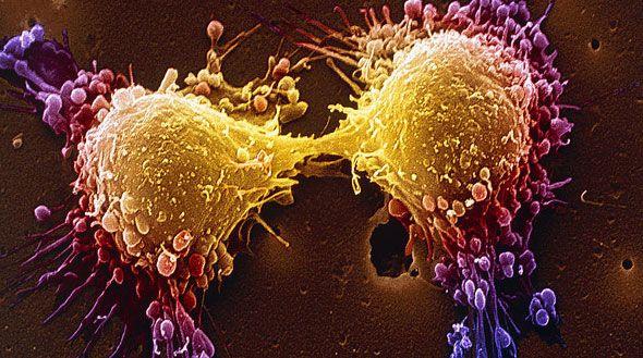 Το γονίδιο του επιθετικού καρκίνου του προστάτη | tovima.gr
