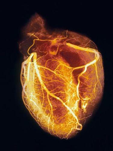 Αναγέννηση της καρδιάς με ένα γονίδιο! | tovima.gr