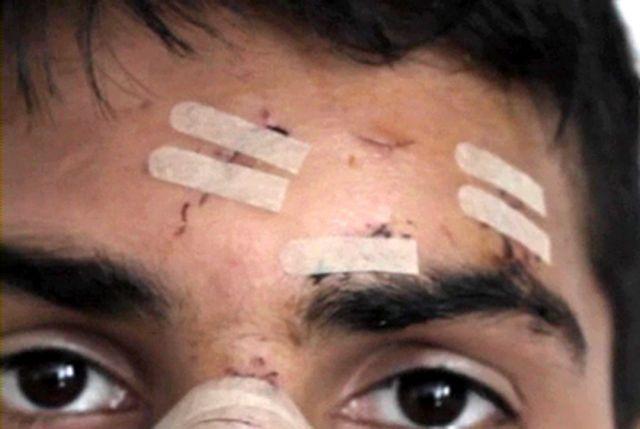 Οι Γιατροί του Κόσμου κατέγραψαν 75 περιστατικά ρατσιστικής βίας | tovima.gr