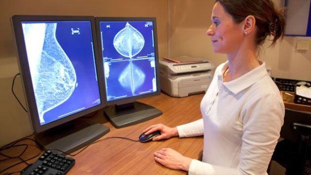 Γονίδιο καθορίζει την επιθετικότητα του καρκίνου του μαστού | tovima.gr