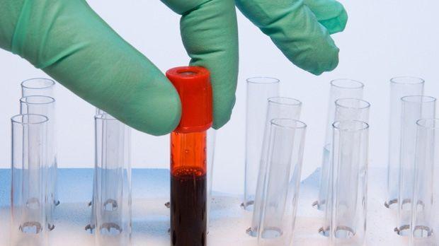 Εξέταση αίματος ίσως βοηθά στη διακοπή του καπνίσματος | tovima.gr