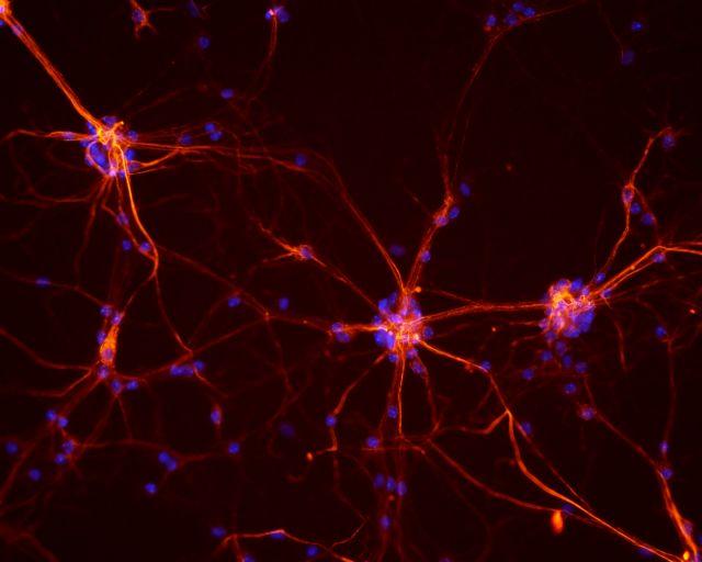 Εκατοντάδες μεταλλάξεις σε κάθε νευρώνα του εγκεφάλου | tovima.gr