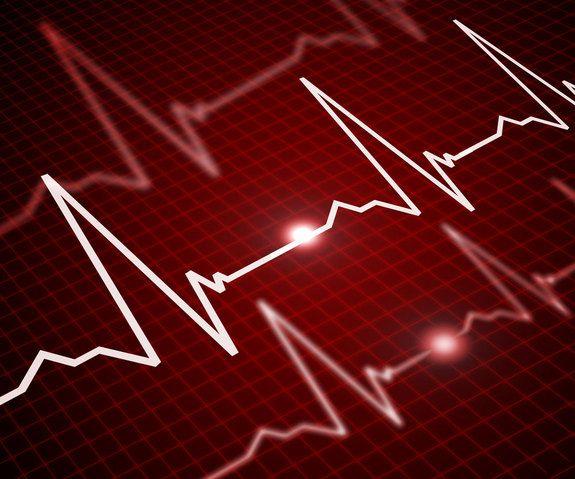 Το γονίδιο της καρδιακής αρρυθμίας | tovima.gr