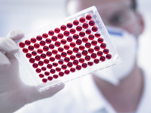 Λογισμικό εντοπίζει τον καρκίνο πριν την εμφάνιση συμπτωμάτων   tovima.gr