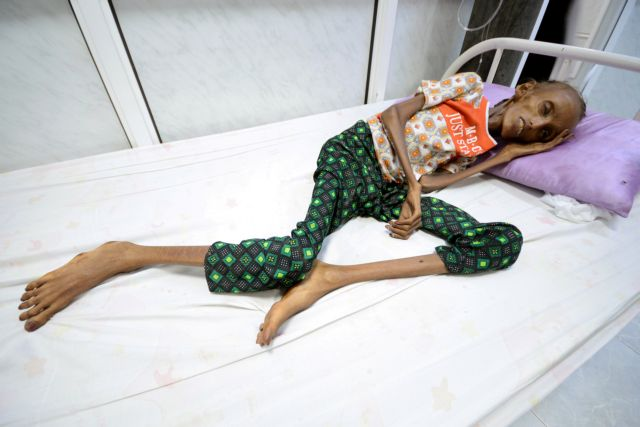 ΟΗΕ: Σοκαριστική η κατάσταση στην Υεμένη | tovima.gr