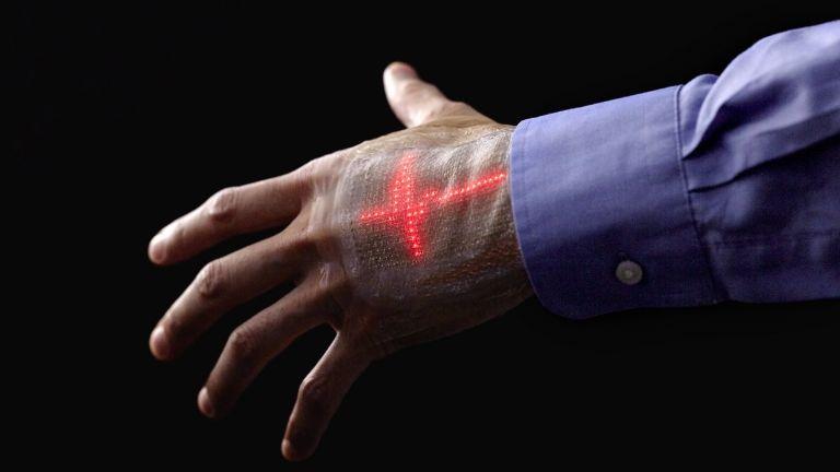 Ηλεκτρονικό δέρμα προβάλλει το καρδιογράφημα επάνω στο χέρι | tovima.gr