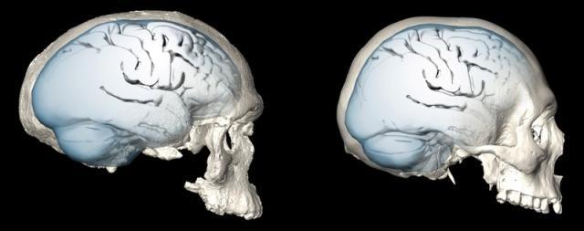 Το σφαιρικό σχήμα του ανθρώπινου εγκεφάλου εξελίχθηκε σταδιακά | tovima.gr