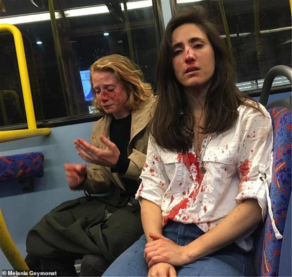 Τι υποστήριξαν στο δικαστήριο οι δράστες της ομοφοβικής επίθεσης στο Λονδίνο | tovima.gr