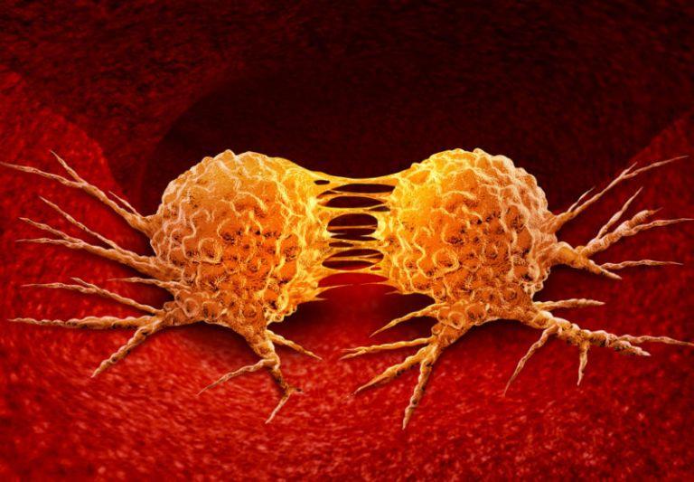 Σχεδόν 10 εκατομμύρια άνθρωποι πεθαίνουν κάθε χρόνο από καρκίνο | tovima.gr
