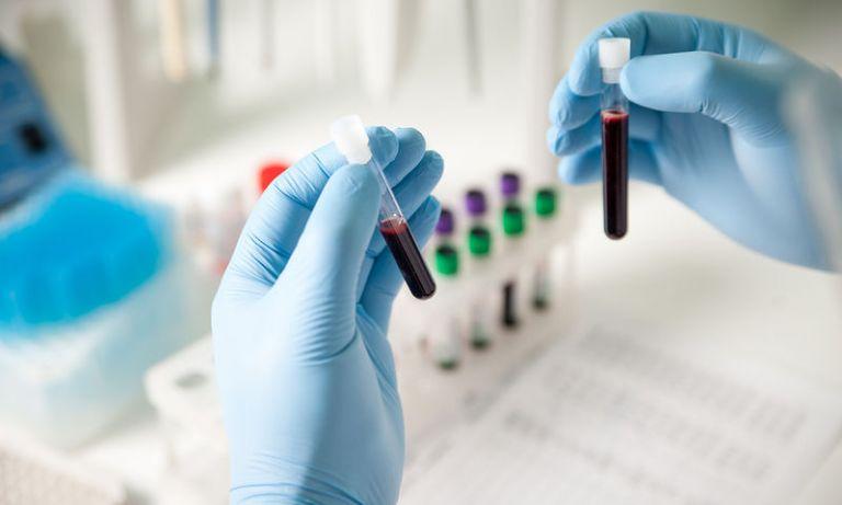 Προβλήματα μνήμης και πως μπορείτε να τα εντοπίσετε με τεστ αίματος   tovima.gr