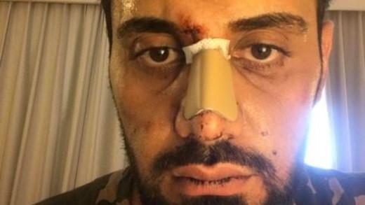Τουρίστας καταγγέλλει ρατσιστική επίθεση και  διακρίσεις από τις Αρχές   tovima.gr