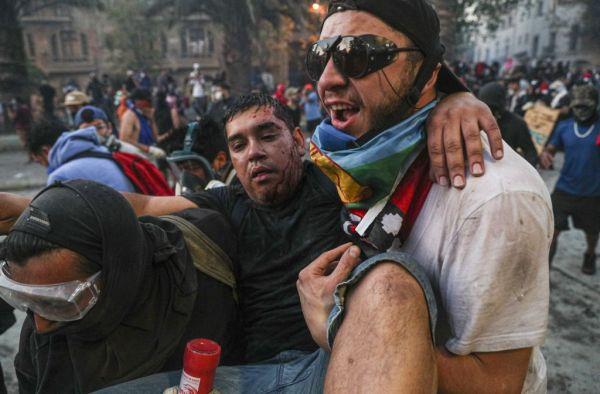 Χιλή: Χιλιάδες καταγγελίες για αστυνομική βία ακόμη και σε παιδιά | tovima.gr