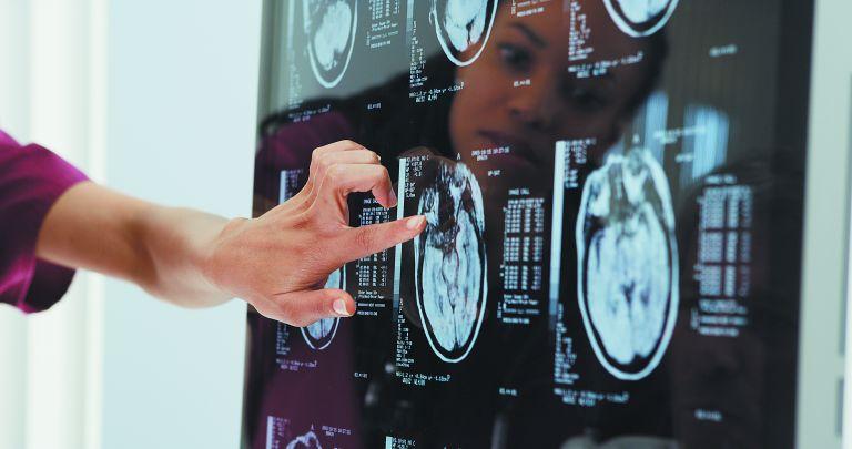 Ελληνική έρευνα : Πώς o κορωνοϊός «αλώνει» τον εγκέφαλο   tovima.gr