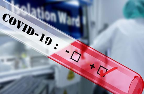 Νέα τεστ κορωνοϊού, όπως τα τεστ εγκυμοσύνης – Εύκολα και γρήγορα | tovima.gr