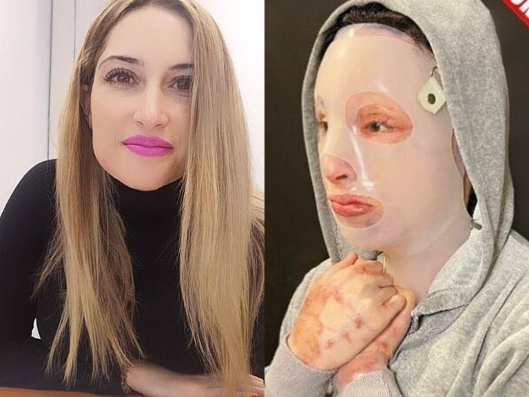 Επίθεση με βιτριόλι : «Δεν δέχομαι καμία συγγνώμη» απαντά η Ιωάννα στην 35χρονη | tovima.gr
