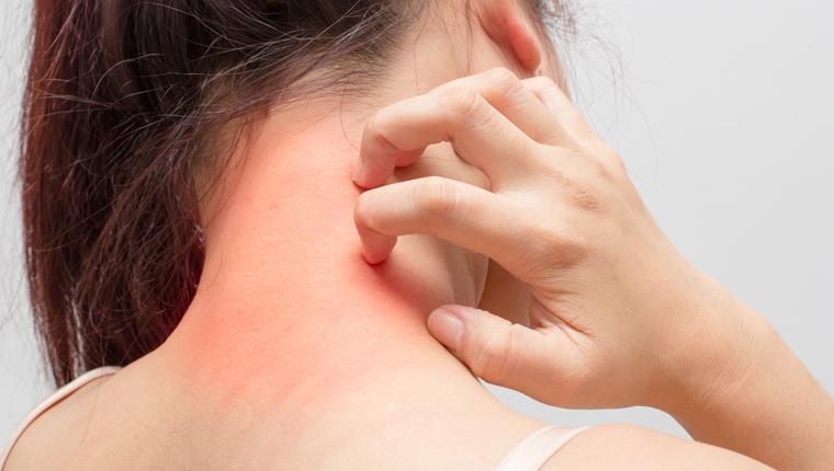 Εμβόλια : Πιθανή παρενέργεια η εμφάνιση έρπη ζωστήρα | tovima.gr