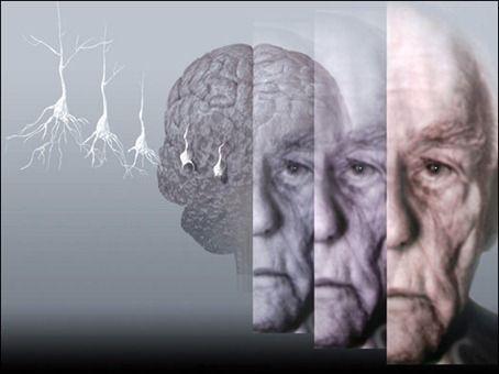 Ποιος είναι ο Ελληνας πίσω από το φάρμακο-ελπίδα για το Αλτσχάιμερ   tovima.gr