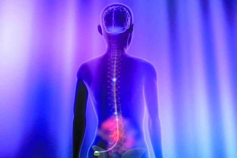 Ηλεκτρόδια εναντίον της νόσου του Crohn – Νέες ελπίδες από έλληνες επιστήμονες | tovima.gr