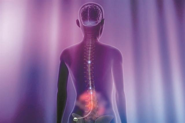 Ηλεκτρόδια εναντίον της νόσου του Crohn | tovima.gr
