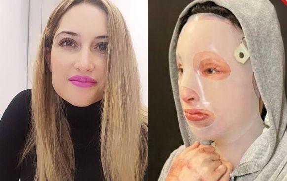 Ιωάννα Παλιοσπύρου – Δημοσίευσε ανατριχιαστικές φωτογραφίες μετά την επίθεση με το βιτριόλι | tovima.gr